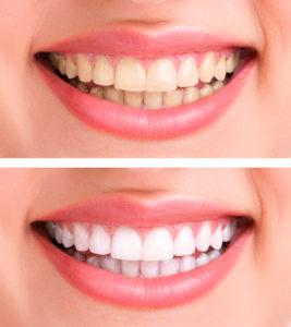 Tandblegninger_lysning_Hillerødtandlægerne