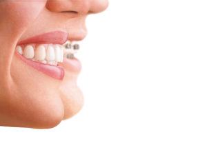 Tandretning Invisalign Hillerød Tandlægerne