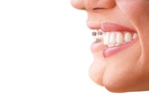 Tandretning_Invisalign_Hillerødtandlægerne