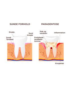 Paradentose-tandkødsbetændelse_800x900