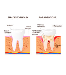 Tandkødsbetændelse_Paradentose800x900